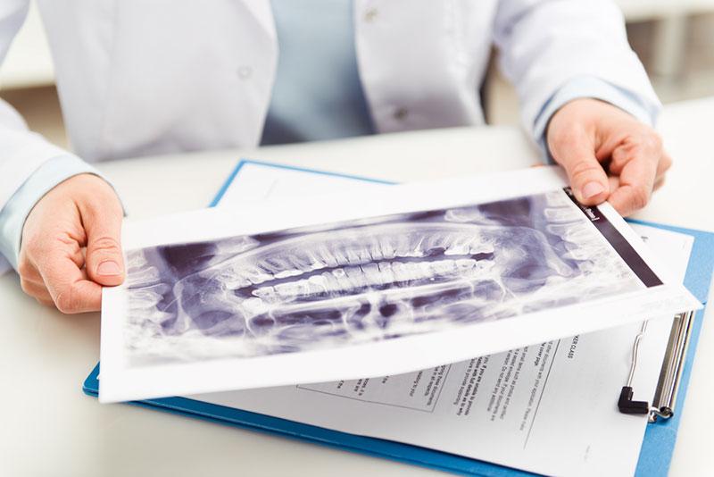 Curso online grátis de Introdução à Anatomia Dental