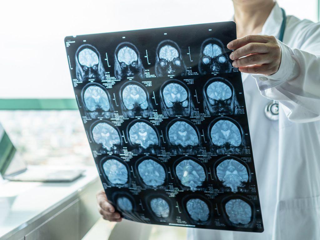 Curso online grátis de Doenças Neurodegenerativas : Alzheimer, Parkinson e Escleroses